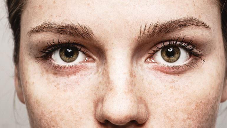 Göz ve Dudak Seğirmesi Neden Olur?