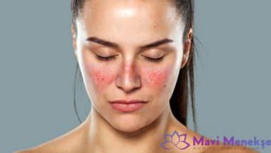 Lupus Hastalığı Neden Olur?